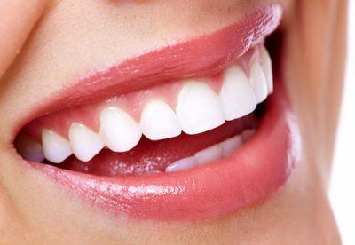 teeth cleaned
