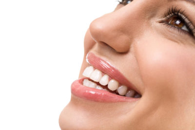 ultra-thinveneers in Highlands Ranch