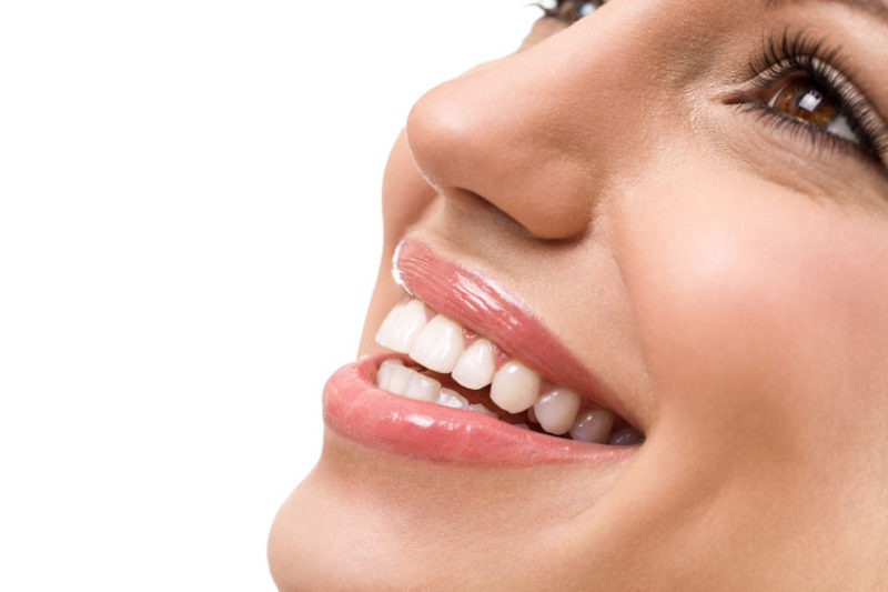 ultra-thin veneers in Highlands Ranch