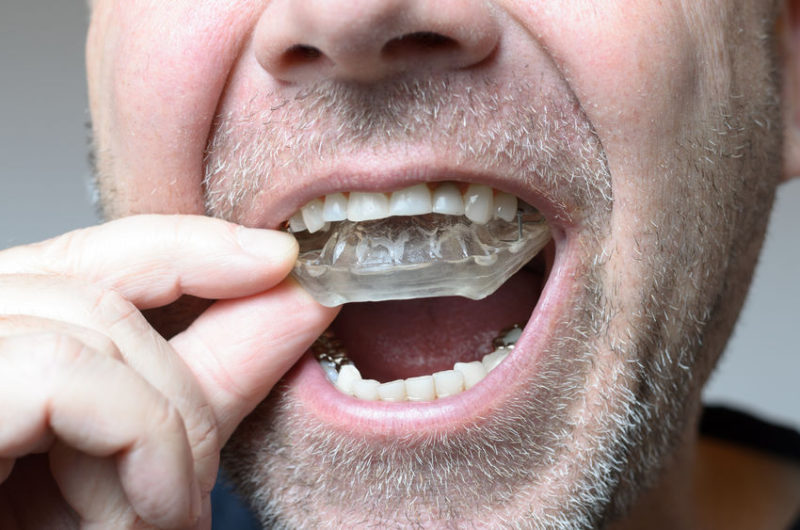 You may have bruxism.