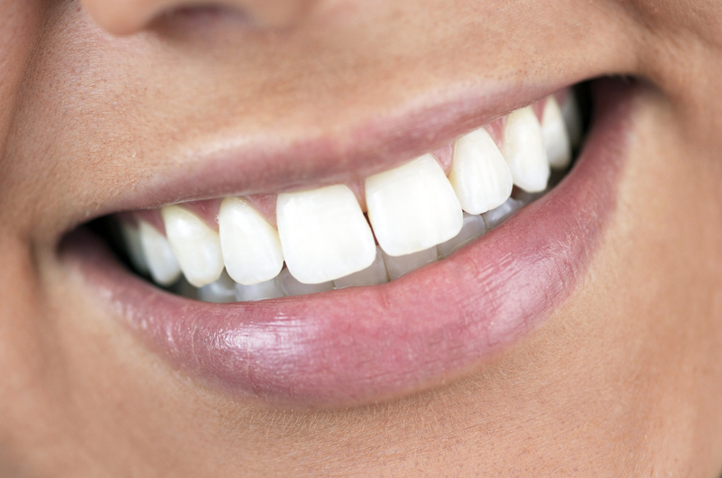 Whiter smile for 2019 at Highlands Ranch Family Dental