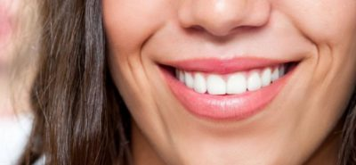 ultra-thin veneers