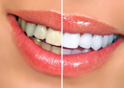whiter smile in Highlands Ranch